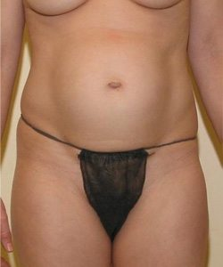 Dr-Joel-Maier-abdominoplasty-tummy-tuck-before-after-Straight-Before