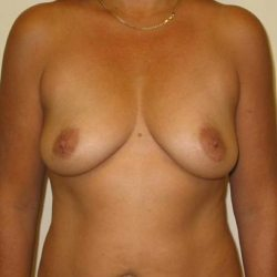 Dr-Joel-Maier-breast-augmentation-before-after-Straight-Before