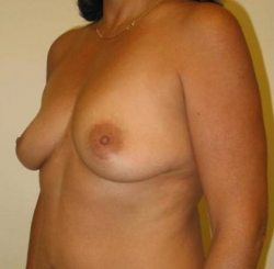 Dr-Joel-Maier-breast-augmentation-before-after-Three Quarter-Left-Before
