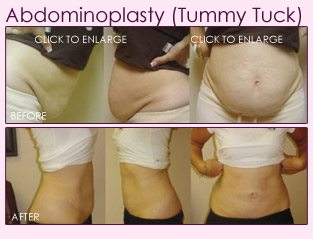 before_after_right_abdominoplasty