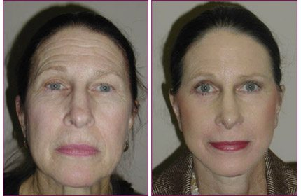 facelift_before_after