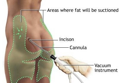 Liposculpture/Liposuction Procedure