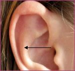 Otoplasty-Ear Setback