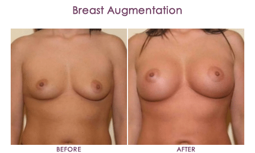 Breast-Augmentation-1