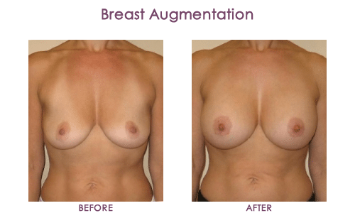 Breast-Augmentation-2
