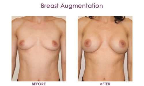Breast-Augmentation-3