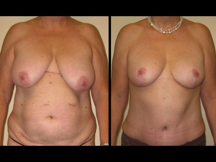 Dr-Joel-Maier-breast-reduction-before-after-frontal