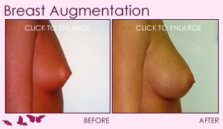 before_after_right_breast_augmentation_01a