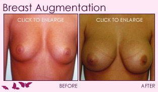 before_after_right_breast_augmentation_01b
