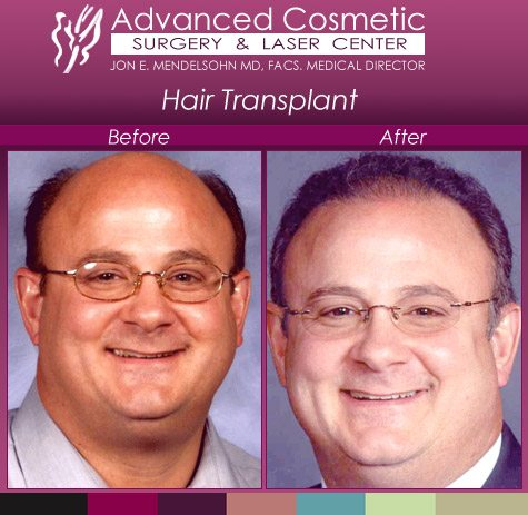 before_after_right_hair_transplant_01_large