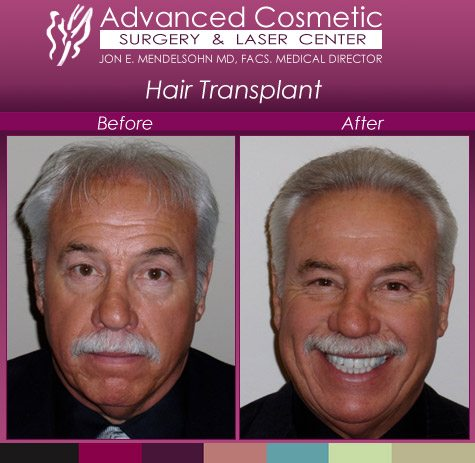 before_after_right_hair_transplant_02_large