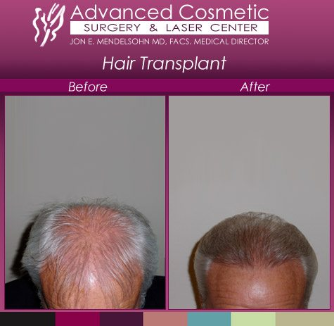 before_after_right_hair_transplant_03_large