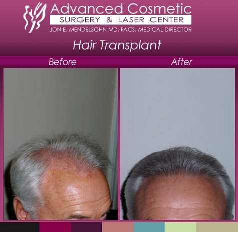 before_after_right_hair_transplant_04_large