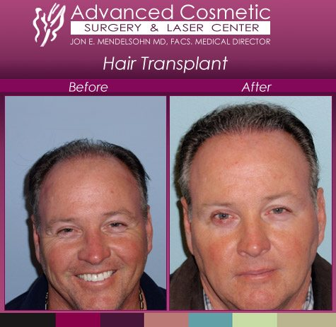 before_after_right_hair_transplant_05_large