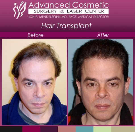 before_after_right_hair_transplant_06_large