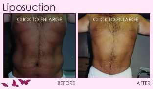 Before and After Liposculpture/Liposuction