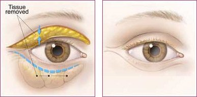 Blepharoplasty-Before and After