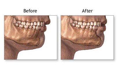 chin_implant_05_lg