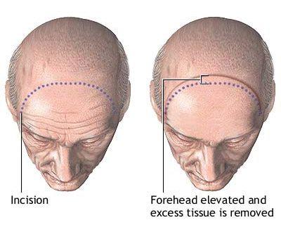 forehead_series_02_lg