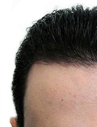 Hair Transplant Regrowth-Results