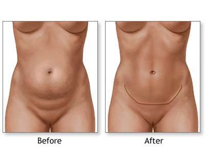 left_tummy_tuck_technique_05_large