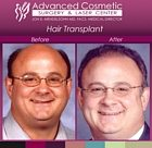 sm-before_after_right_hair_transplant_01_large