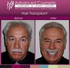 sm-before_after_right_hair_transplant_02_large