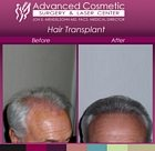 sm-before_after_right_hair_transplant_04_large