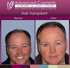 sm-before_after_right_hair_transplant_05_large