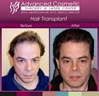 sm-before_after_right_hair_transplant_06_large