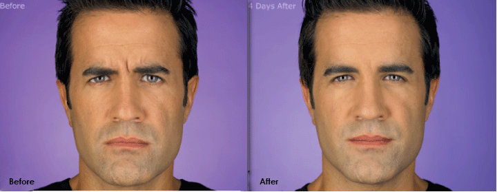 Botox Before and After-Male