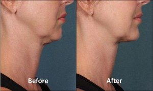 kybella-before-after-800px