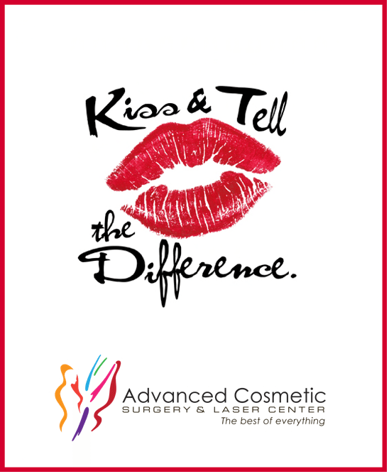 Kissable Lips with Filler