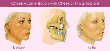cheek implants