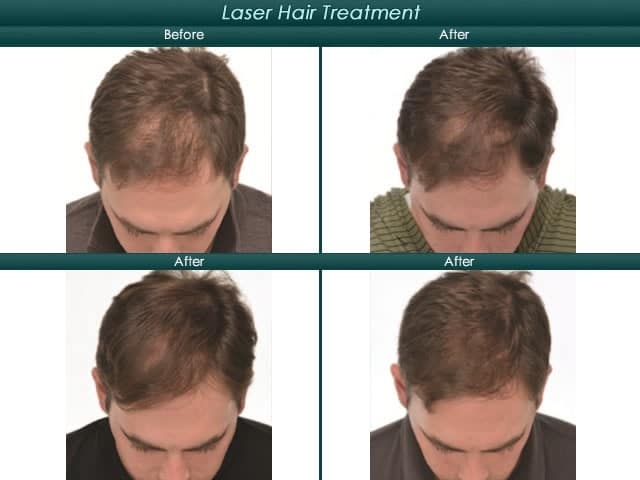 topical hair restoration before and after