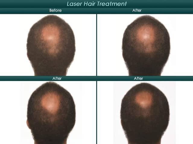 crown balding hairline progression
