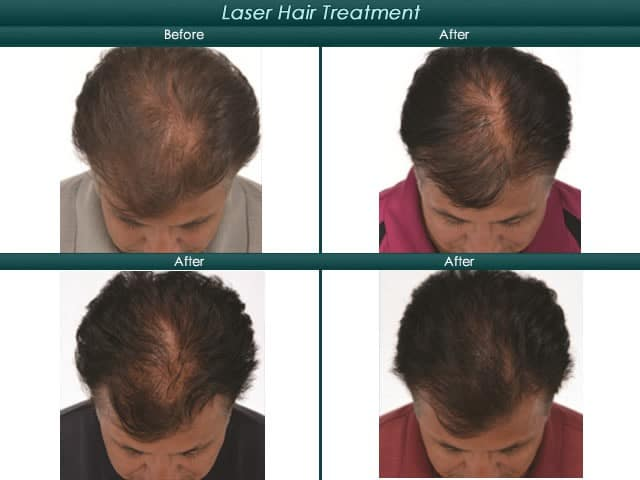 Before and after of hair growth