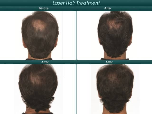 before and after mens laser treatment