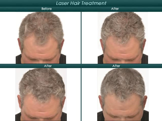 mens laser hair treatment before and after