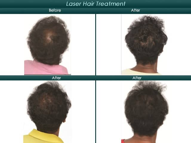 laser hair treatment back of scalp