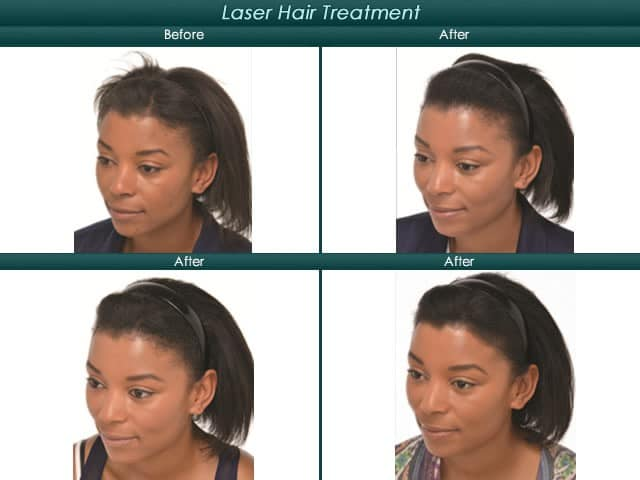 laser hair treatment for woman