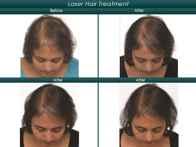 woman laser hair treatment before and after