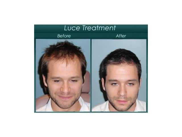 luce treatment before and after