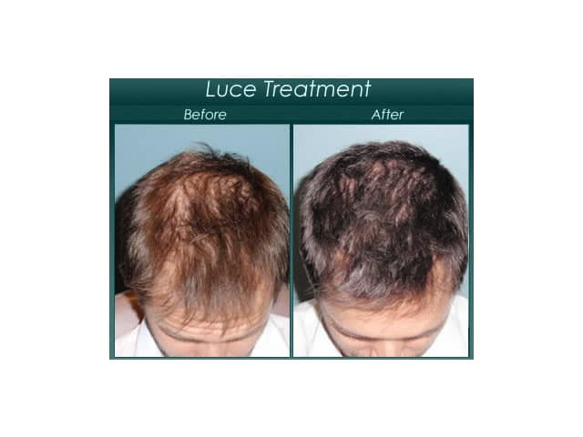 luce transplant before and after
