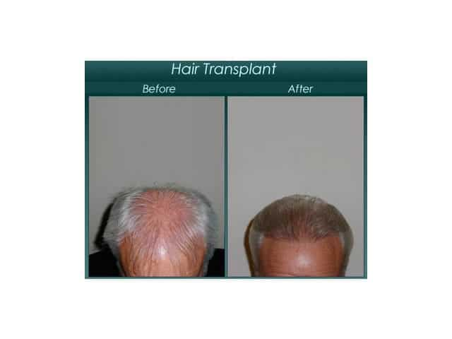 Mens hair transplant before and after
