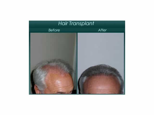 before and after elderly hair regrowth