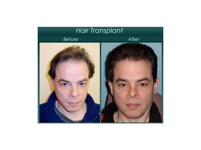 male hair implants before and after