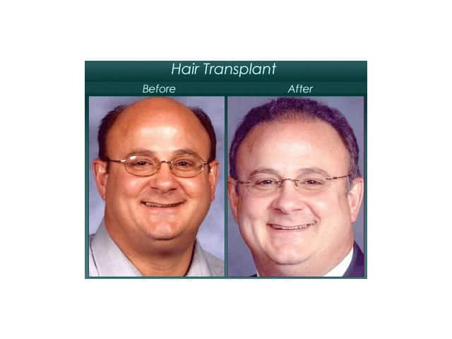 hair surgery before and after