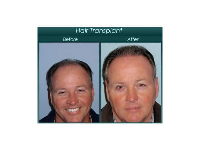 forehead procedure before and after