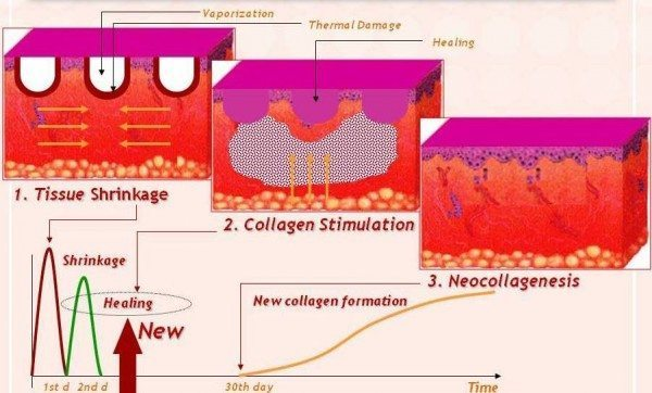 Collagen Shrinkage